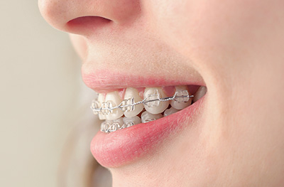 Southern Dental Specialists orthodontics clear ceramic braces